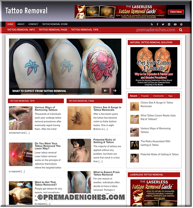 Tattoo Removal - Ready Made Website with PLR