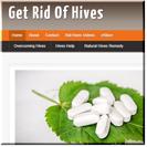 Get Rid Hives
